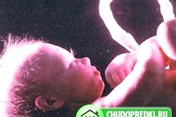 25 Тиждень вагітності. Фото і відео