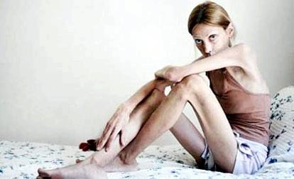 Анорексія: причини виникнення і симптоми