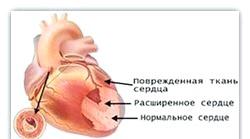Хвороби серця у дітей. Основні симптоми
