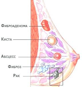 Діагностика і лікування мастопатії фото