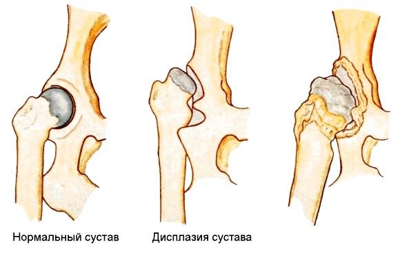 Дисплазія кульшового суглоба фото