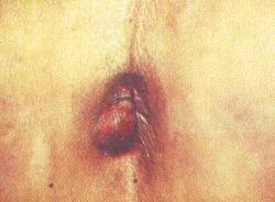 Геморой - можливий наслідок після пологів фото
