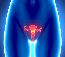 Гіпоплазія матки фото
