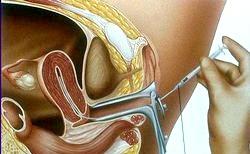 Інсемінація сперми фото