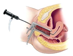 Дослідження прохідності фаллопієвих труб