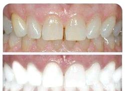 Як відбілити зуби. Народні поради фото