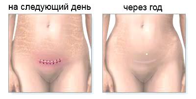 Як заживає шов після кесаревого розтину