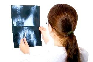 Які причини появи остеохондрозу?