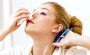 Кровотеча з носа при вагітності