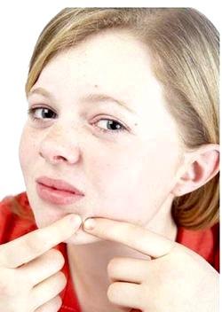 Лікування підліткових прищів народними засобами