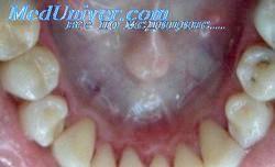Лікування зубів і профілактика захворювань порожнини рота