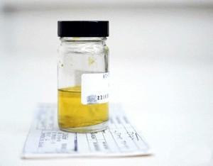 Лейкоцити в сечі при вагітності фото