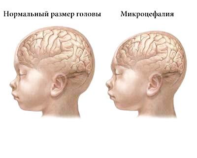 Мікроцефалія -   форми, причини, лікування фото