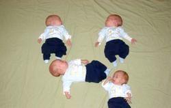 Багатоплідна вагітність. Передчасні пологи фото