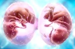 Багатоплідна вагітність