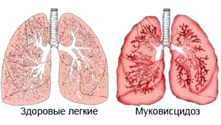 Муковісцидоз - причини, лікування, перспективи фото