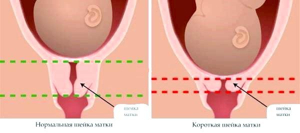 Норма і наслідки короткої шийки матки у вагітних