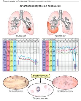 Вогнищева пневмонія