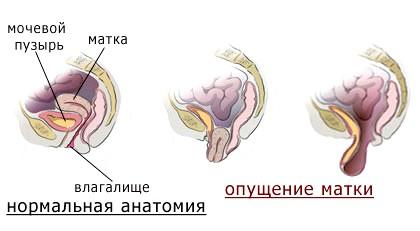 Опущення матки після пологів