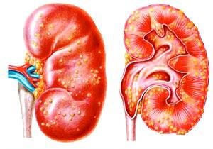 Особливості лікування гострого нефриту