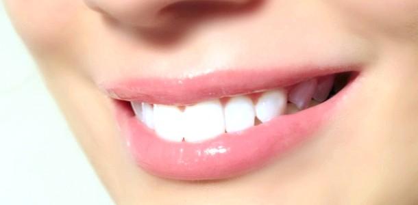 Відбілювання зубів в домашніх умовах: поради експерта (відео)