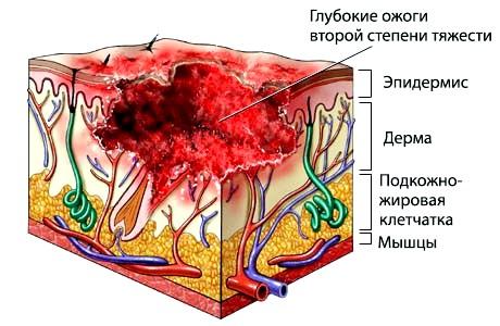 як виглядає опік на тілі