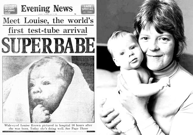 Перша дитина, зачата за допомогою ЕКЗ, народився 35 років тому (ФОТО) фото