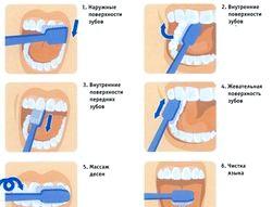 Правильний догляд за зубами. Як чистити? Корисні поради