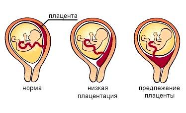 види передлежанняплаценти