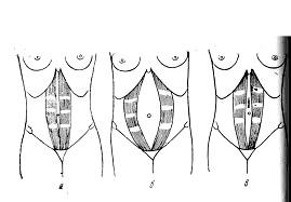 Діастаза прямих м'язів живота