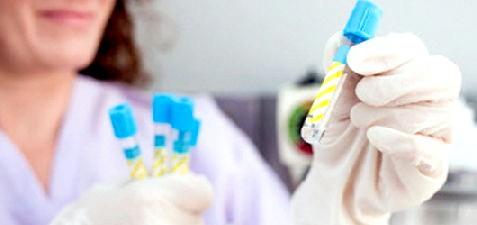 Сухість у роті при вагітності фото