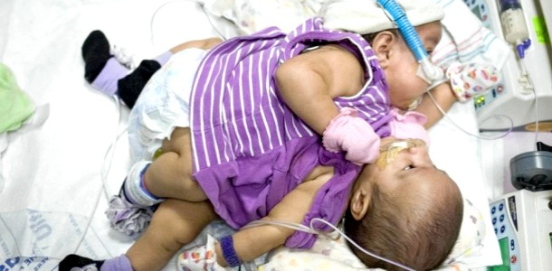 У Техасі лікарі розділять сіамських близнюків-дівчаток (ФОТО)