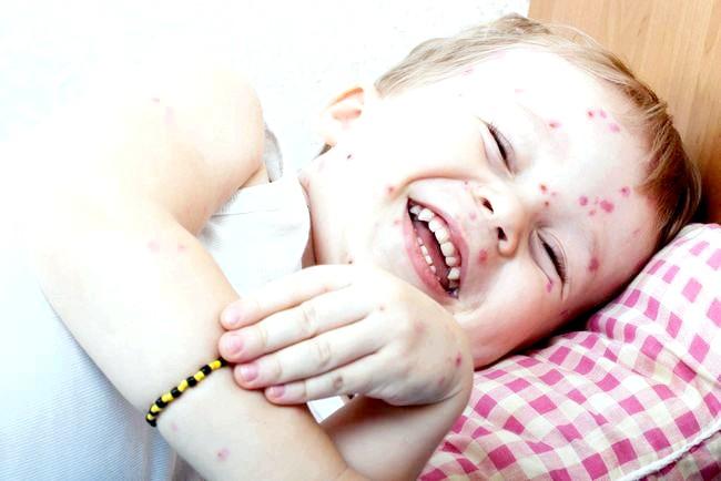 Вітрянка у дітей: наслідки та можливі ускладнення