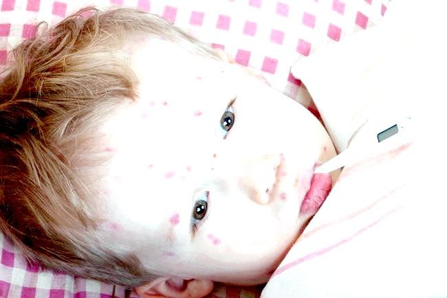 Вітрянка у дітей: симптоми і лікування