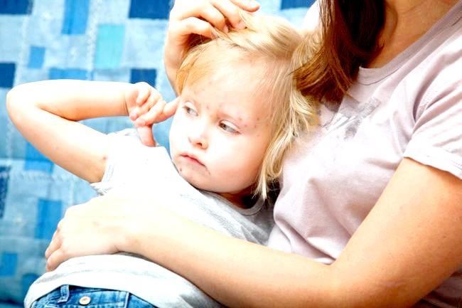 Вітрянка у дитини: симптоми та лікування