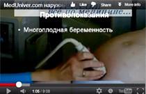 Відео зовнішнього акушерського повороту плода
