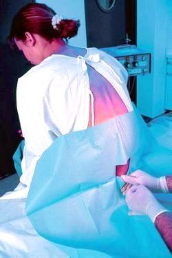 Відео пологи з епідуральної анестезією.