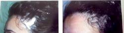 Випадання волосся після пологів. Лікування настоєм лопуха