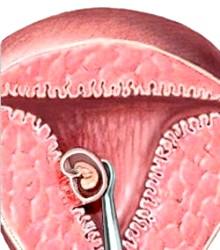 Вискоблювання при вагітності, що завмерла