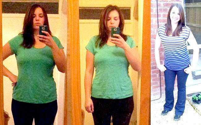 Жінка взяла вагітність за ожиріння