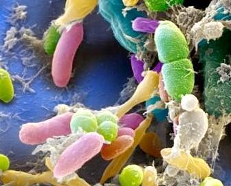 Кишкові інфекції, викликані умовно-патогенною флорою