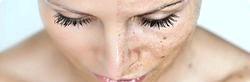 Пігментні плями. Профілактика фото