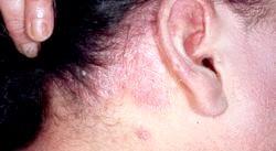 Себорея і методи лікування