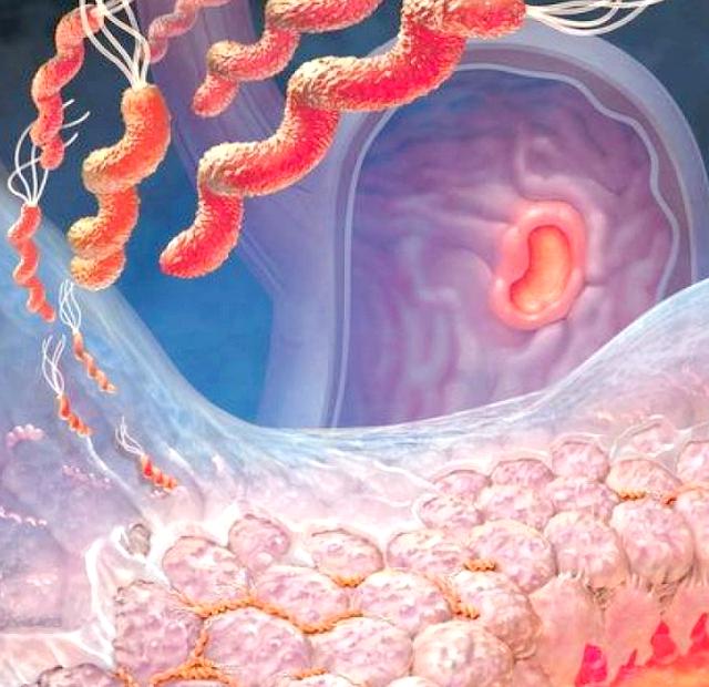 Що робити при нетравленні шлунка?