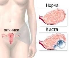 Яєчники при вагітності фото