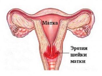 Ерозія шийки матки при вагітності