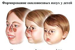 Синусит у дитини симптоми