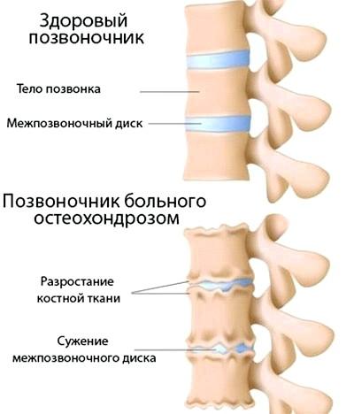 причина болю в шиї - остеохондроз