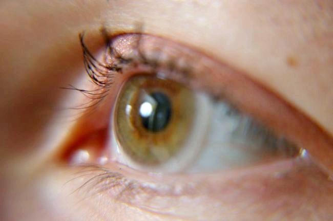 Що робити якщо смикається очей - верхню і нижню повіку