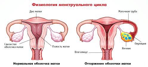Що таке аменорея? фото